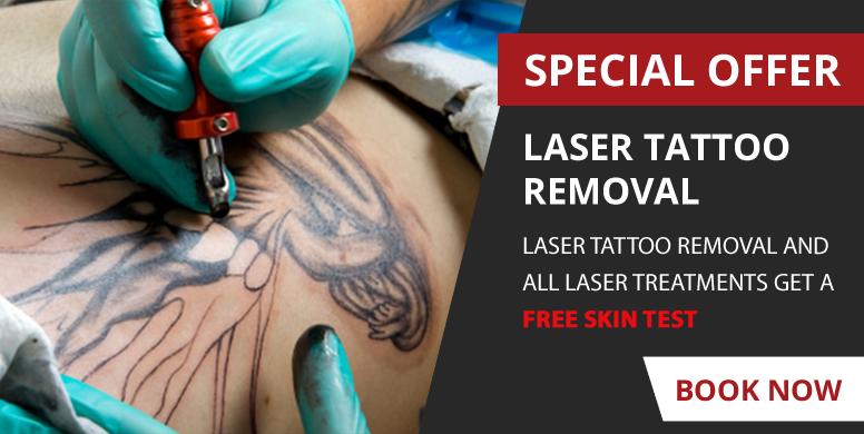 Laser Removal Durham