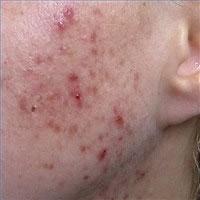 live-acne